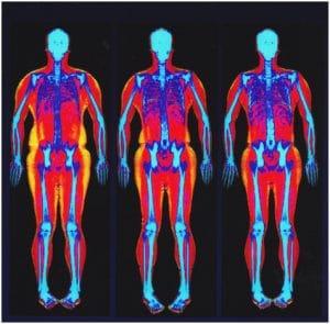 bone density test results chart Lovely DEXA scan – top information on body fat